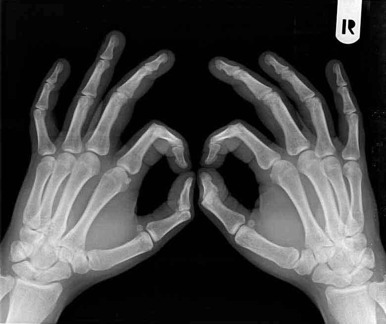 Radiografía atrosis